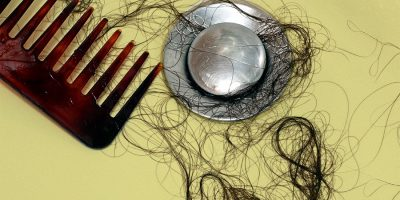 Hair loss in women: the best remedies and effective treatments