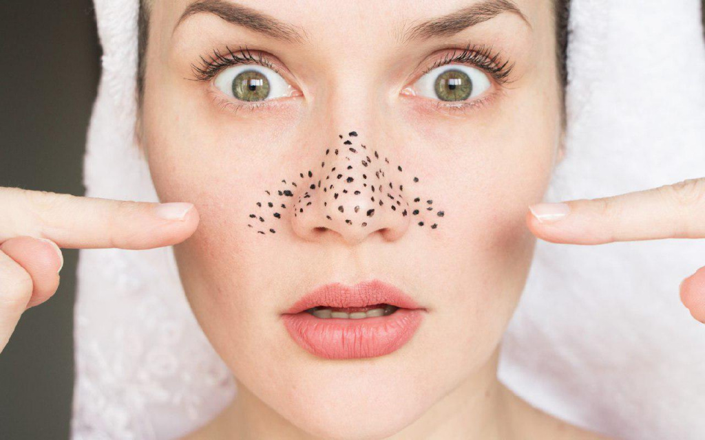 get rid of your blackheads